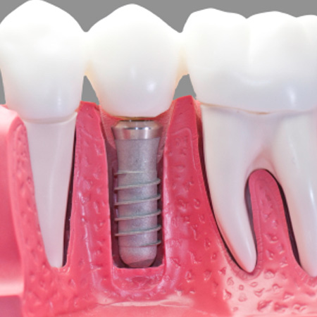 Кому и как можно делать импланты зубов