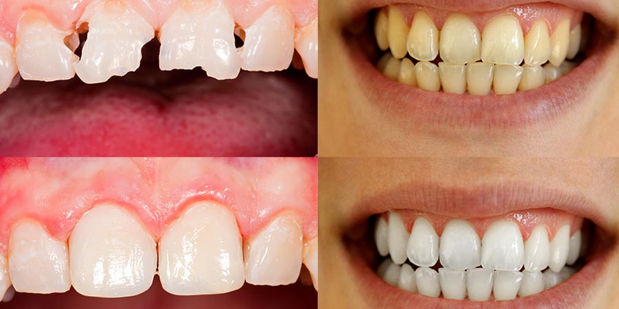 Veneers and Teeth Whitening